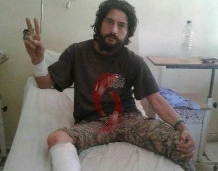An image purportedly of a soldier wounded in the US-led air strike on Deir al-Zour on Saturday 17 September 2016.