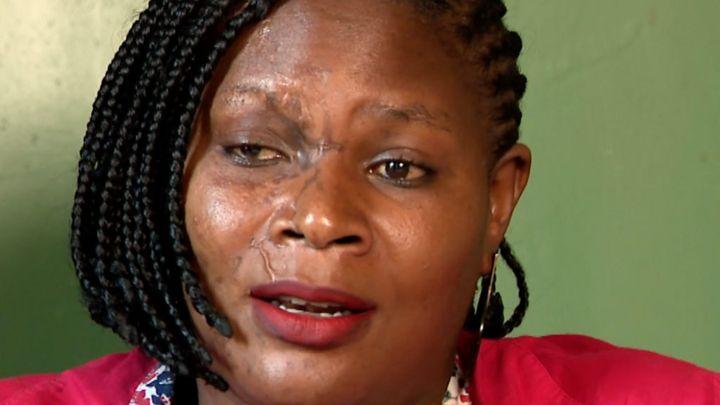 Ugandan acid attack survivors speak out