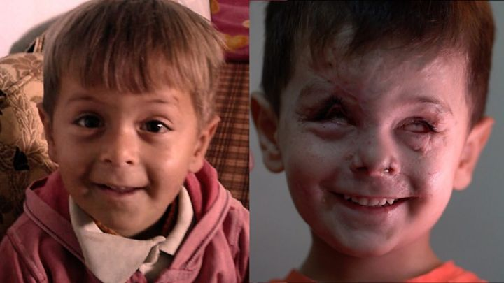 A young face scarred by war: The impact of a Syrian air strike one year on