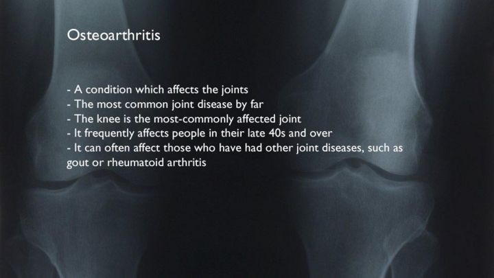 gout cause leg pain how to rid your joints of uric acid crystals drugs for high uric acid