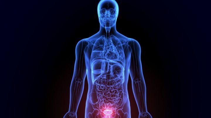 una próstata agrandada causará dolores