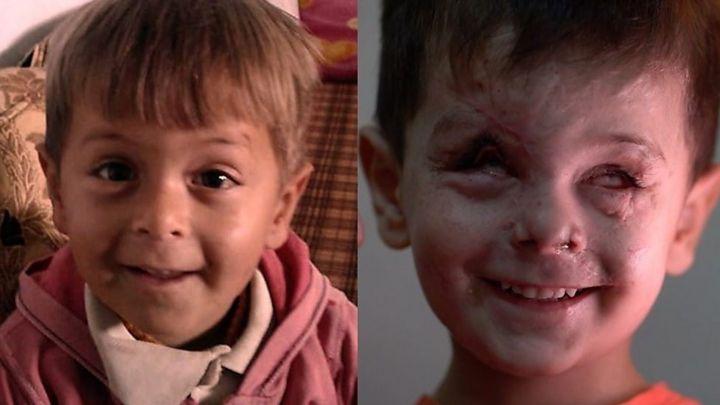 O rosto do menino que traduz a tragédia e o horror da guerra na Síria