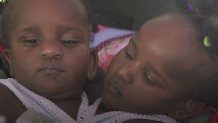 Conjoined twins Marieme and Ndeye continue to surprise doctors