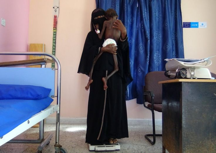 A woman holds her malnourished child in a clinic