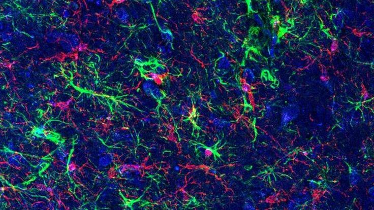 https://ichef.bbci.co.uk/news/736/cpsprodpb/91E5/production/_92794373_astrocytes_microglia-smts-high-res.jpg