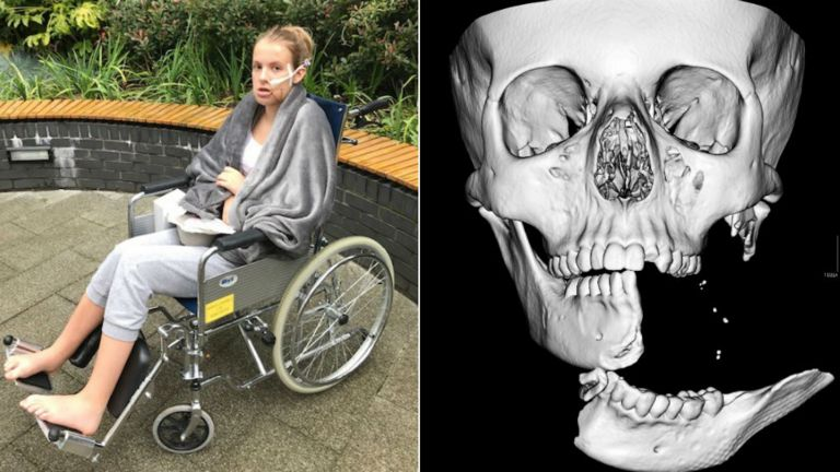 Emily Eccles after the operation, and a CT scan taken beforehand