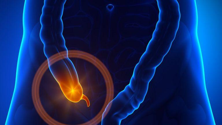 Imagen del apéndice en u gráfico del cuerpo humano.
