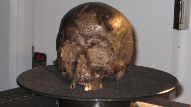 железо-возрастное череп.
