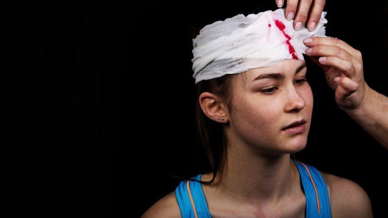 Golpes, fracturas y hasta lesiones cerebrales: las heridas más frecuentes a causa de los celulares