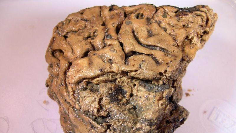 Heslington мозг.