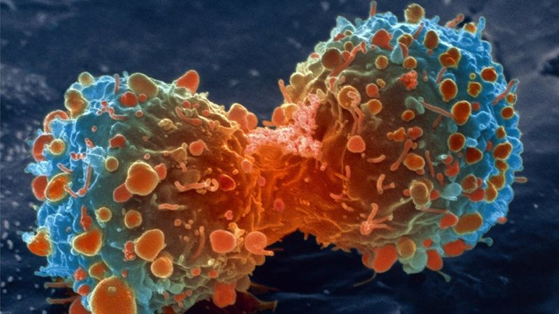 https://ichef.bbci.co.uk/news/800/cpsprodpb/AC15/production/_98335044_m1320644-lung_cancer_cell_division_sem-spl.jpg