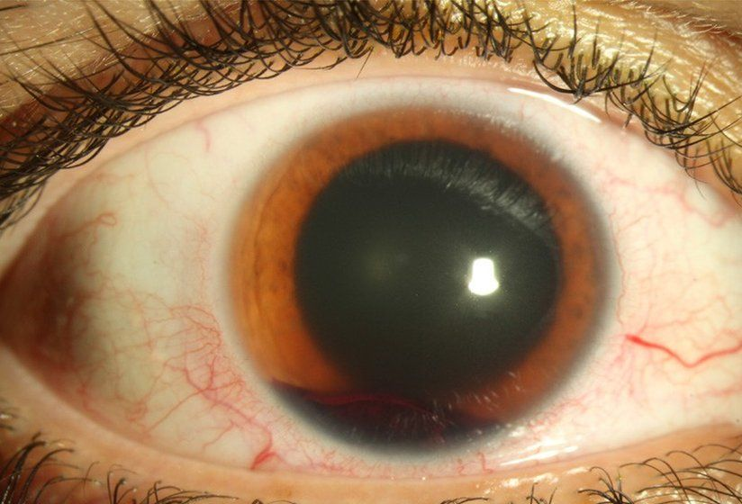 An adult's eye injury from a toy Nerf gun