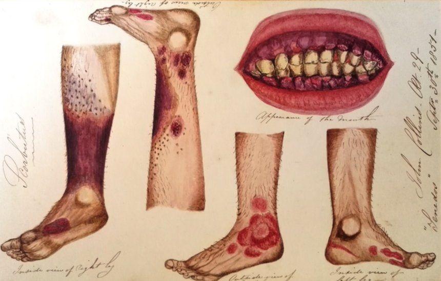 Scurvy illustrations