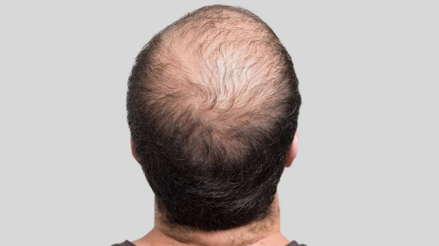 Back view of the head of a balding man