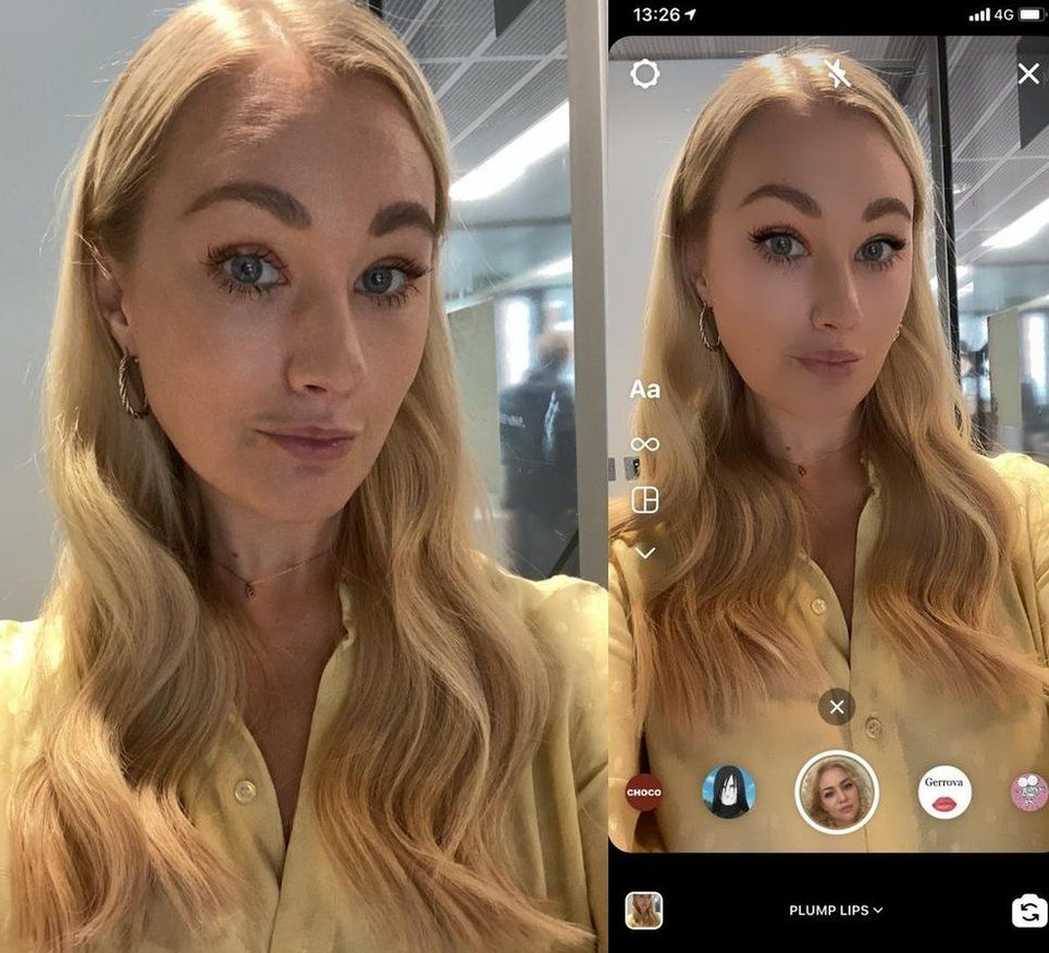 Lip filler Instagram filter