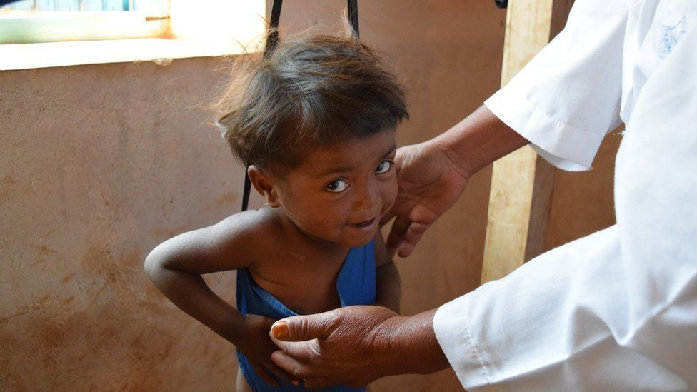 Madagascan child being weighed