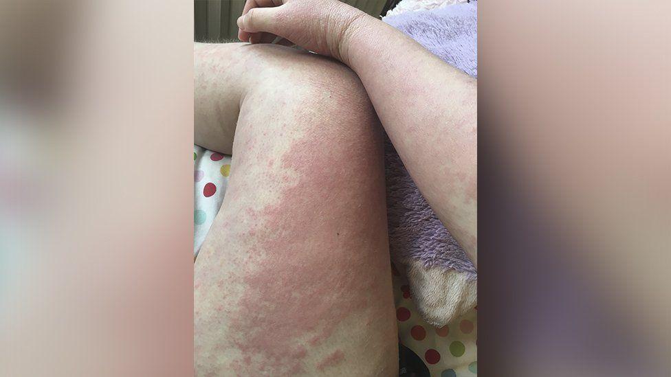Anna's leg with eczema
