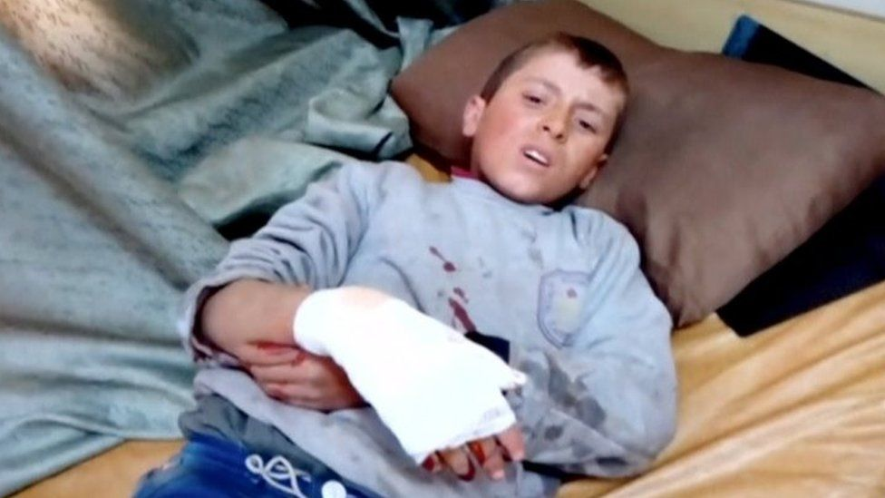 A boy lies on a bed with an injured hand after what is said to be a missile attack on a hospital in Azaz (15 February 2016)