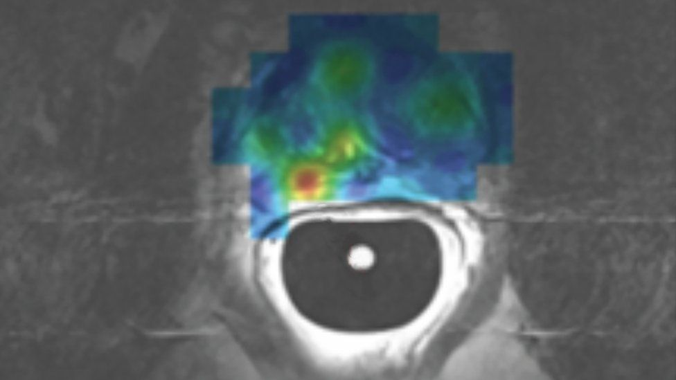 Scan from Europe's first patient to undergo a prostate hyper-polarised MRI