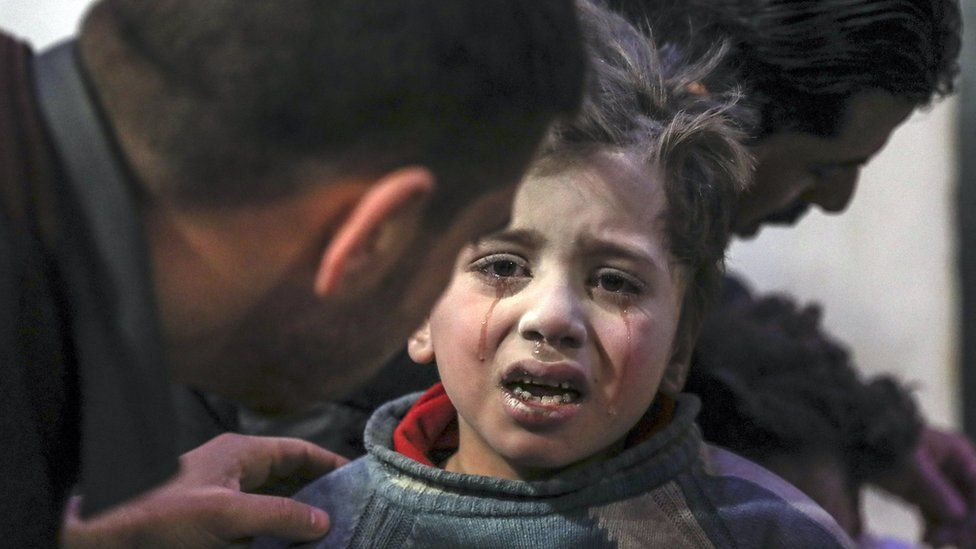 An injured child is treated at a hospital in the rebel-held Eastern Ghouta, Syria (19 February 2018)