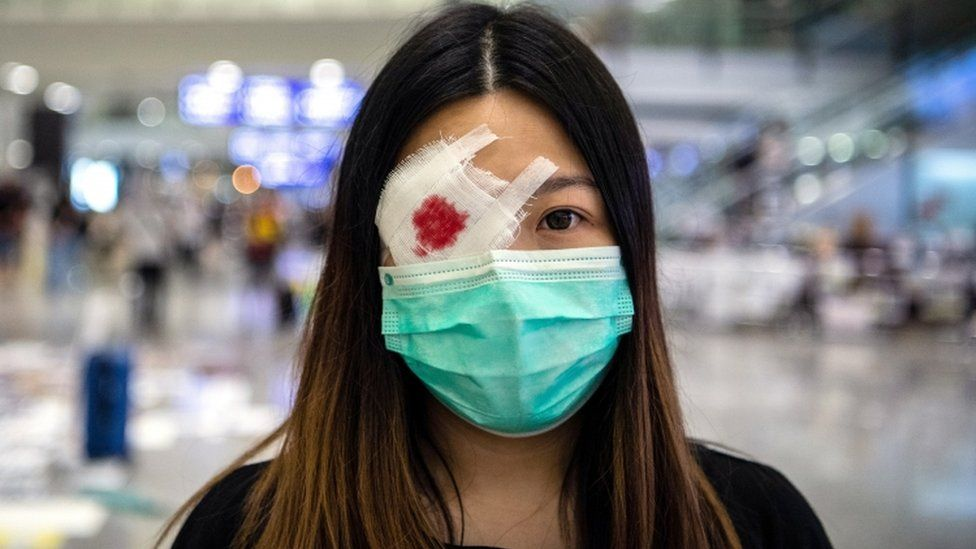A protester wears a mock eye patch as protesters occupy Hong Kong International Airport in Hong Kong, China, on 13 August 2019