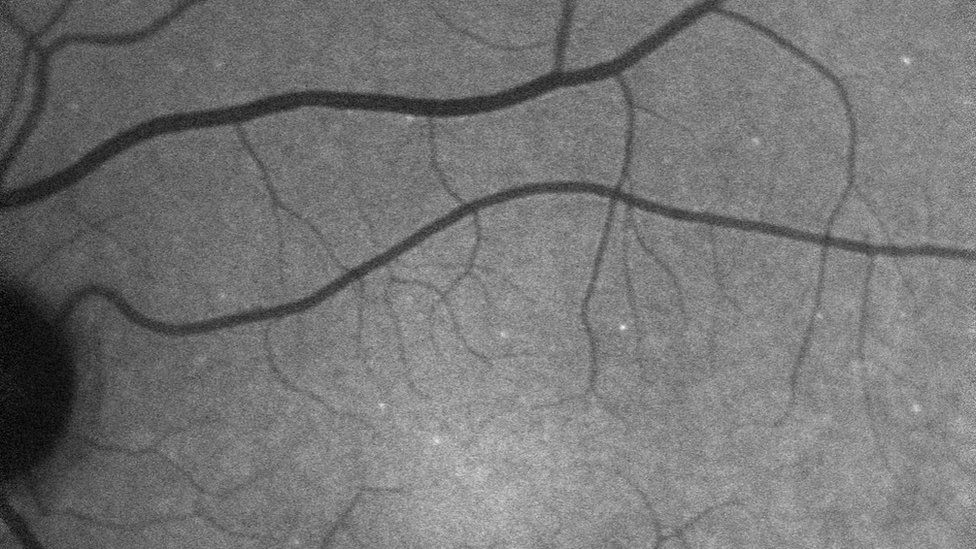 """Glaucoma: Researchers use a fluorescence technique to show up each """"sick"""" retinal nerve cell"""