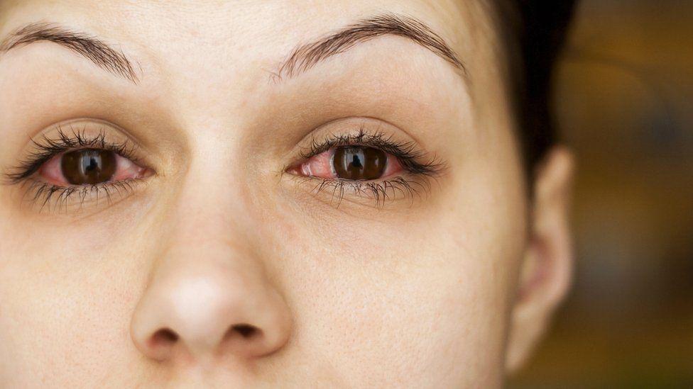 Coronavirus: Can it affect eyesight? - BBC News