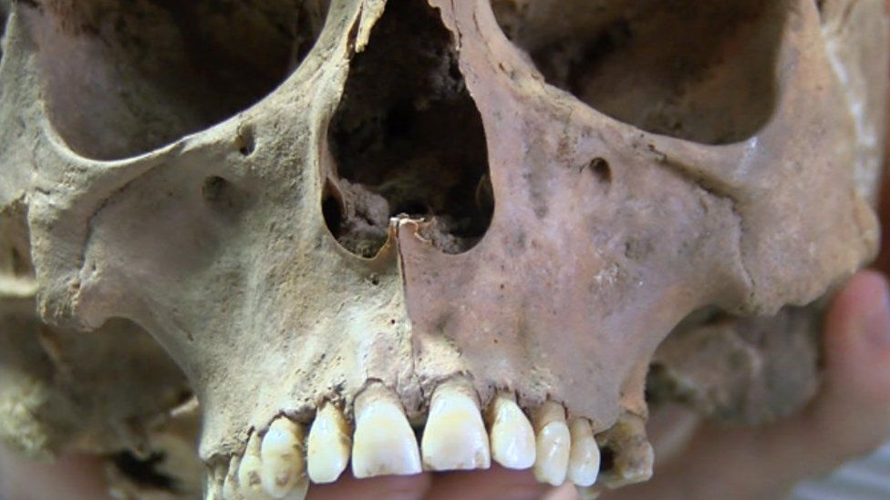Skull of Richard de W'Peton
