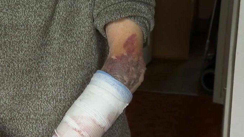 Bruising to John's arm