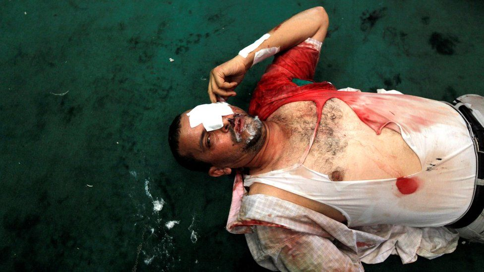 An injured supporter of Mohammed Morsi lies inside a mosque in Ramses Square, Cairo, Egypt (16 August 2013)