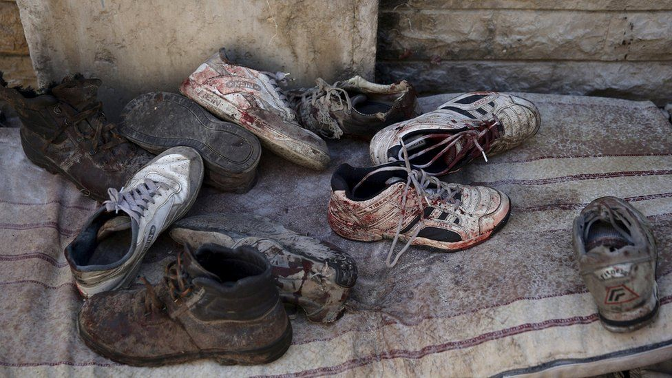 Blood stained shoes are pictured after Syrian government forces fired missiles on a busy marketplace in the Douma neighbourhood of Damascus, Syria October 30, 2015.