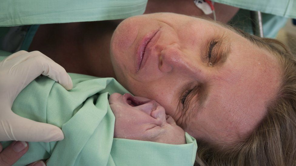 Caesarean births 'affecting human evolution'