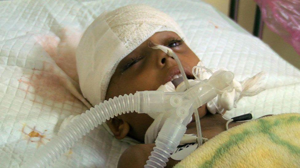 Asma in hospital