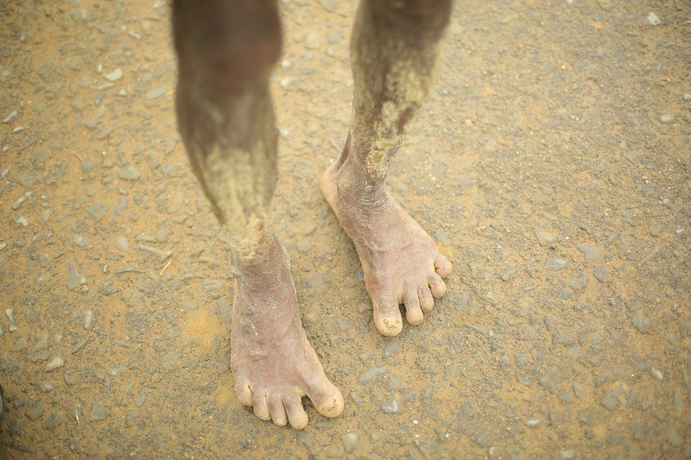 The tired, mud-coated legs of a fleeing Rohingya person
