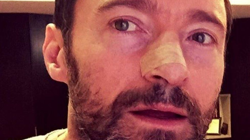 Hugh Jackman Has Skin Cancer Removed On Nose And Posts Sun Safety Warning Bbc Newsbeat