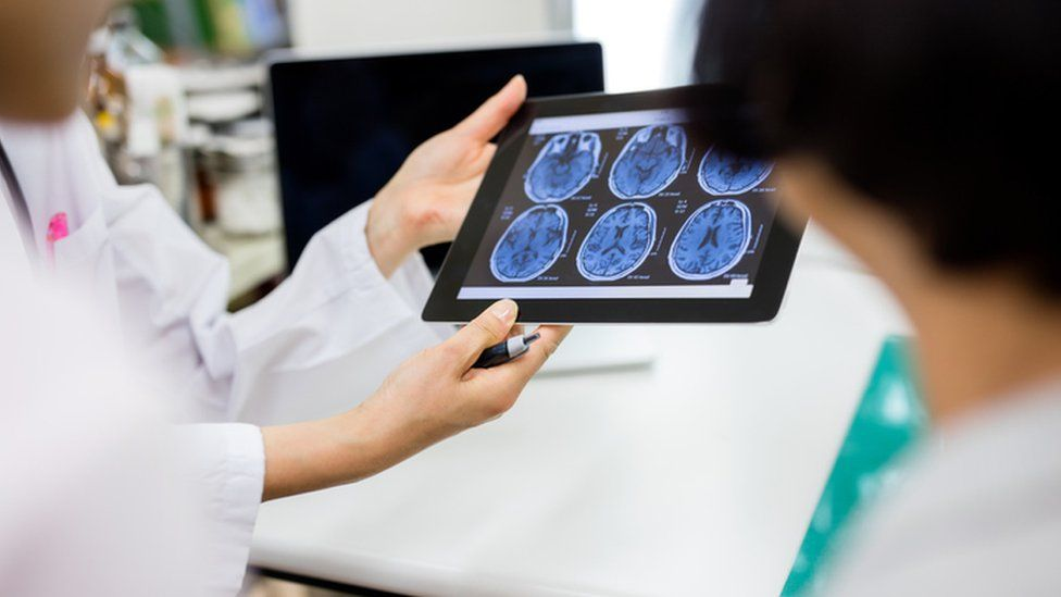 iPad showing brain images