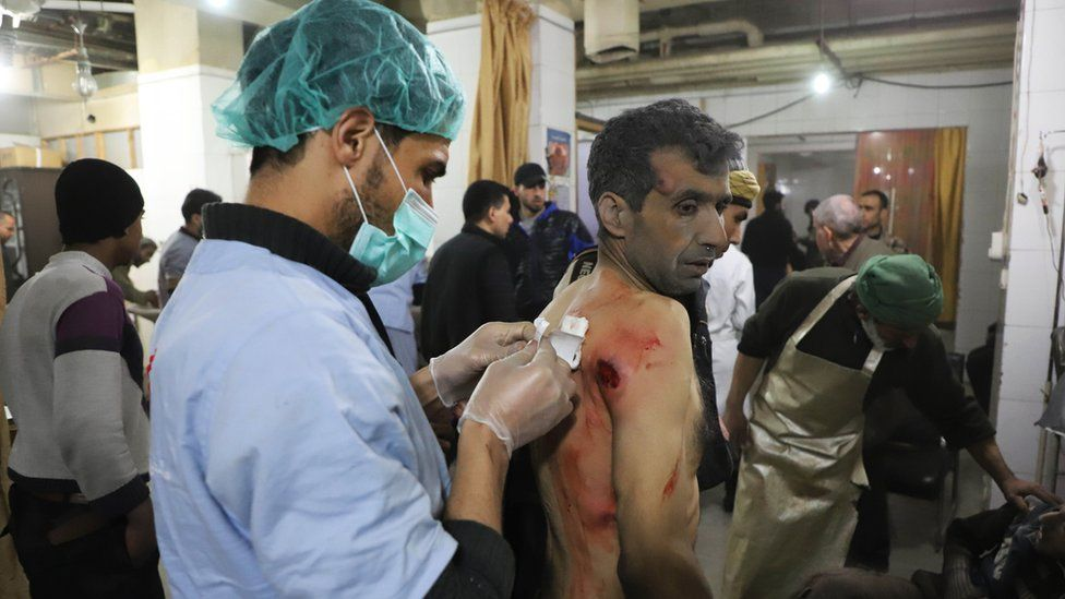 A wounded Syrian man receives treatment as victims of reported regime air strikes on Hamouria, Saqba and Kafr Batna