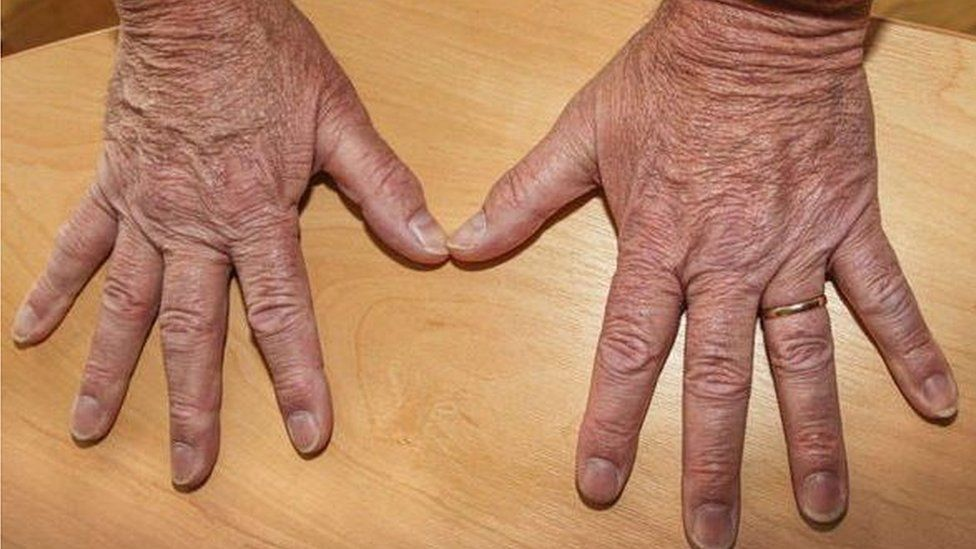 Mike Hookem's hands on Twitter