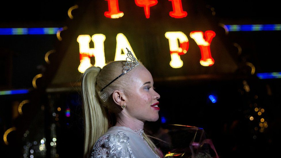 A portrait shot of Zimbabwe's first Miss Albino Sithembiso Mutukura wearing a crown and holding a bouquet after winning the the inaugural Miss Albinism beauty contest, early on March 17, 2018, in Harare.
