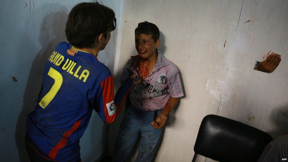 A wounded Syrian boy cries at a make-shift hospital in the rebel-held area of Douma after what activists said were government air raids (12 August 2015)