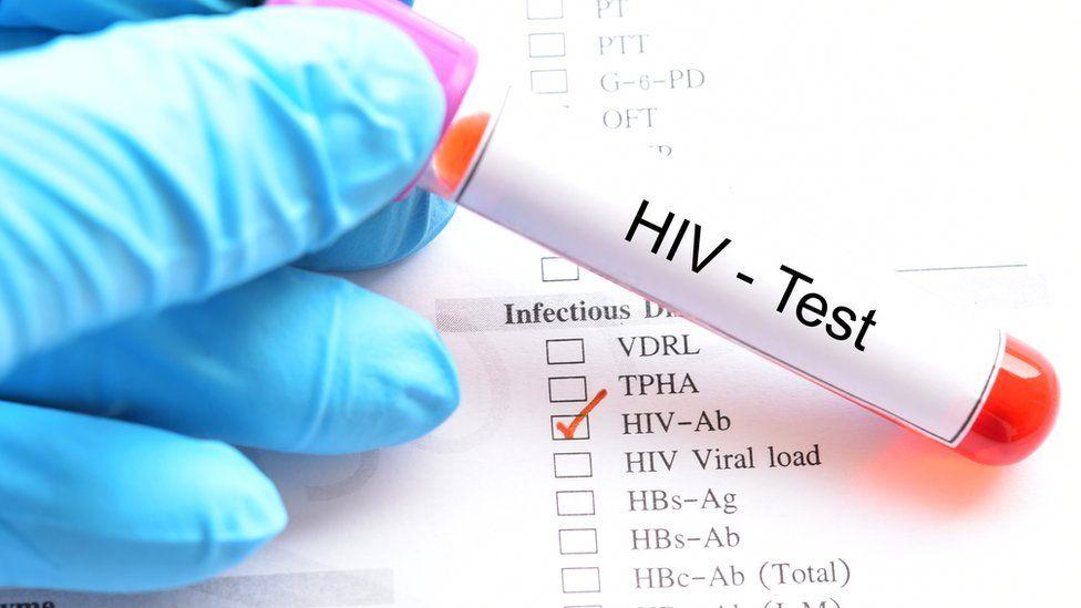 An HIV test