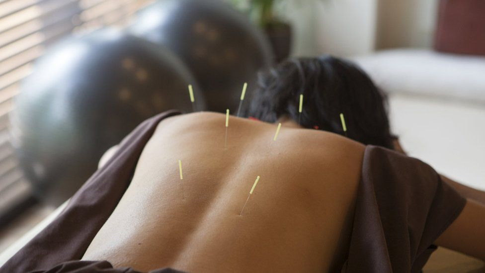 An adult having acupuncture