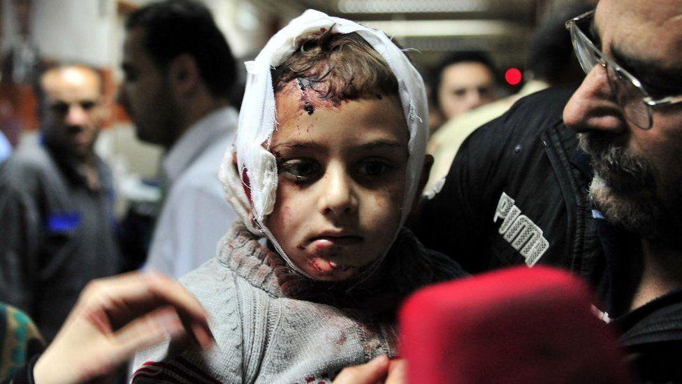Injured Syrian boy at a hospital in Damascus. 21 Feb 2016