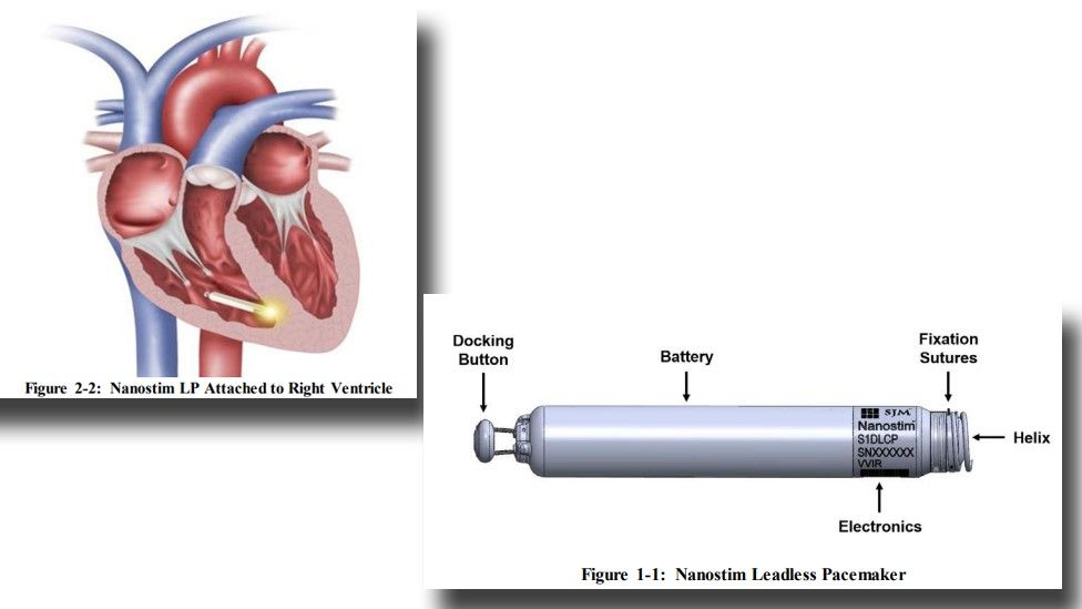 Representation of a Nanostim leadless pacemaker implanted in a heart and a close-up of the device