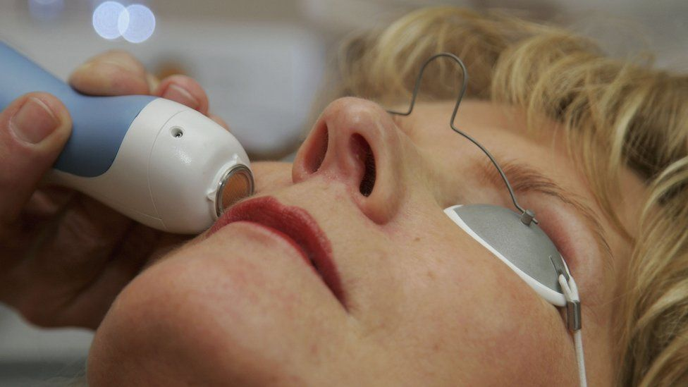 Close up of woman's face as mole is removed