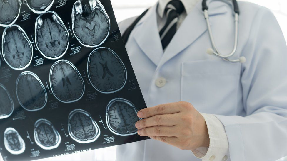 Doctor examining brain scan results