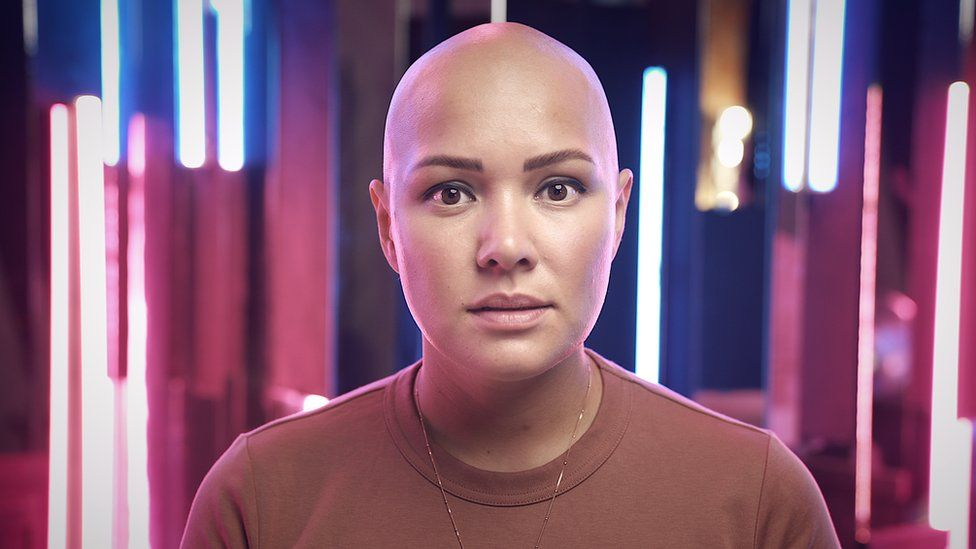 'Sofri bullying por queda de cabelo e hoje organizo grupos de apoio para pessoas como eu'