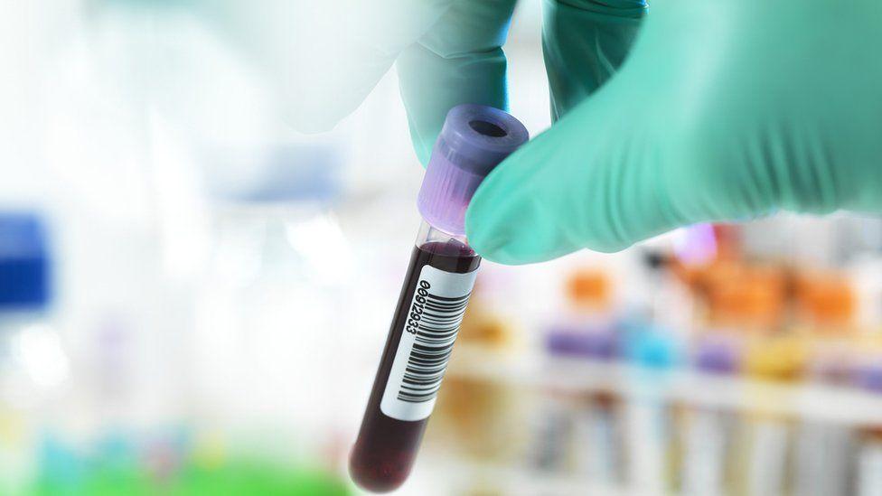 test tube blood sample