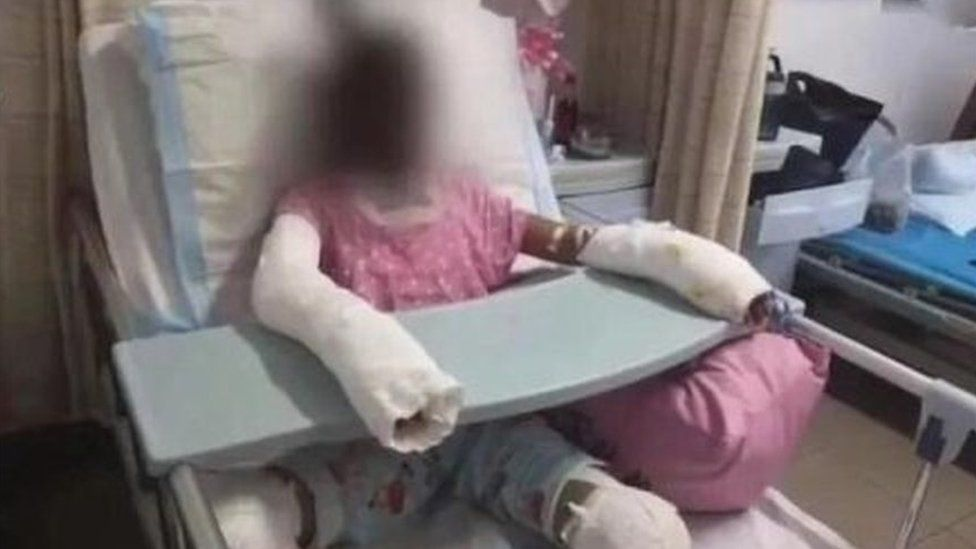 This picture, allegedly showing the 12-year-old victim, has been widely circulated on Weibo