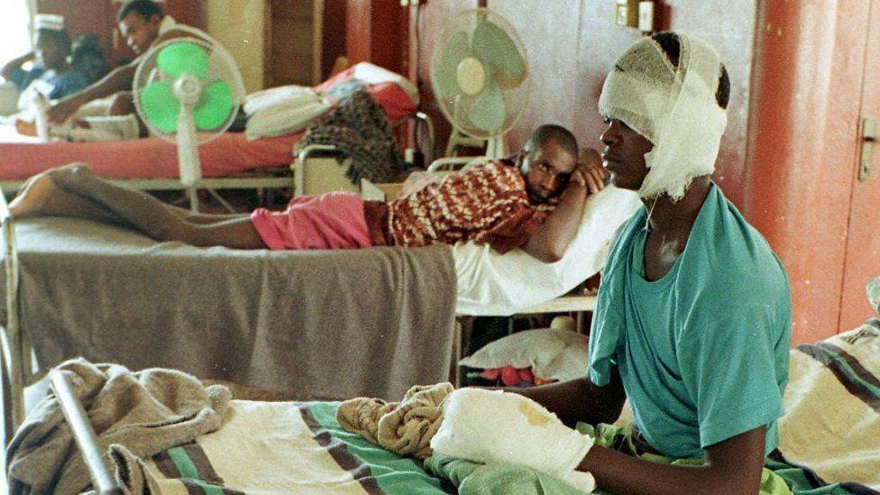 A man mutilated by militias in Sierra Leone in a hospital - May 1998
